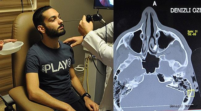 Burnundaki diş kökü 6 yıl sonra çıkarıldı